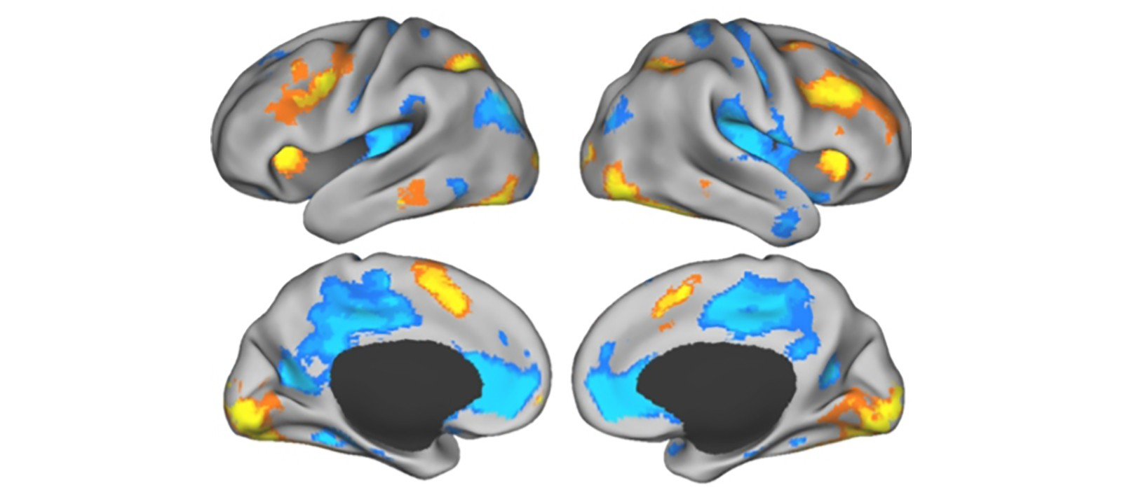 Brain scans task versus rest